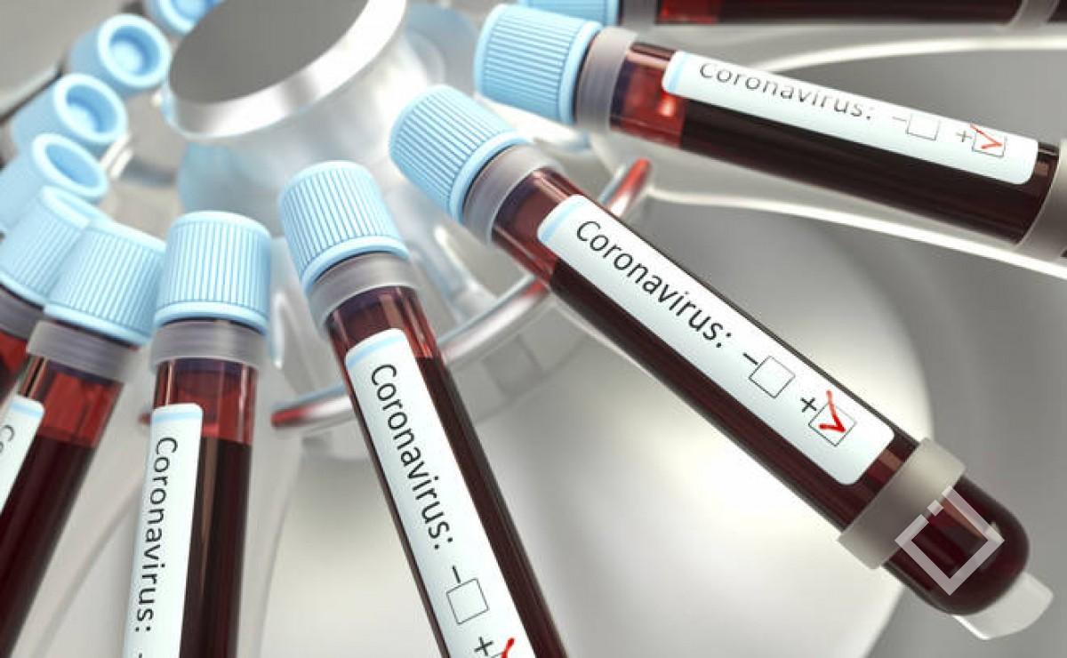 მსოფლიოში კორონავირუსით 664 800 პაციენტია ინფიცირებული
