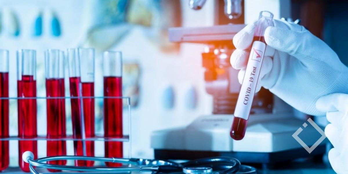საქართველოში კორონავირუსის5219 ახალი შემთხვევა დაფიქსირდა, გარდაიცვალა 42 პაციენტი